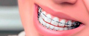 ortodoncia en Granada