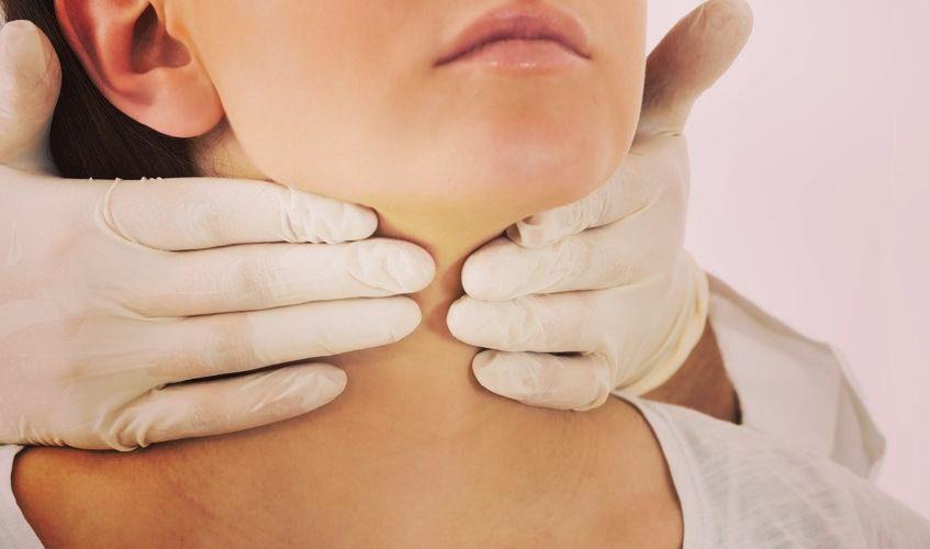 Caseum Amigdalar Síntomas Causas Y Tratamientos Mb Noticias